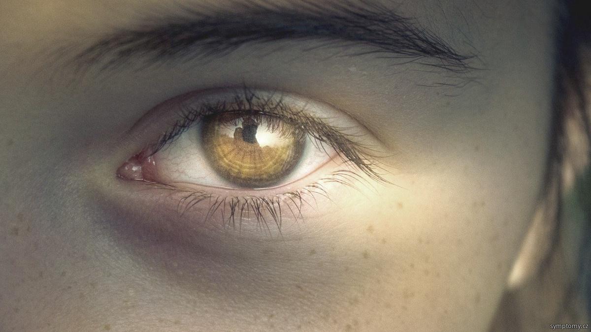 Akutní glaukomový záchvat