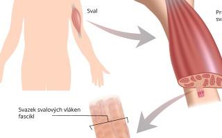 Příčně pruhovaná svalovina kosterní
