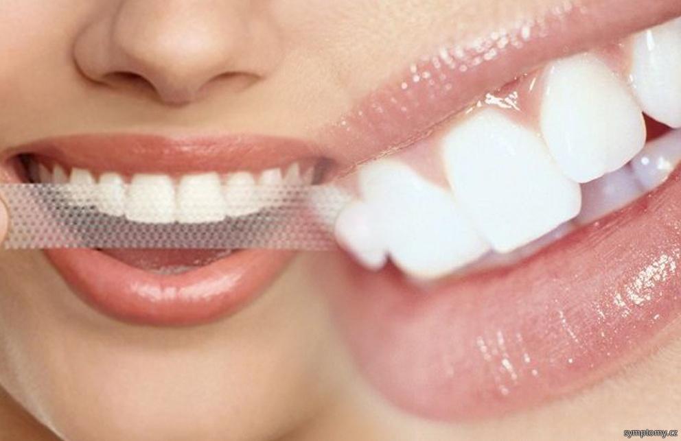 Pásky na bělení zubů