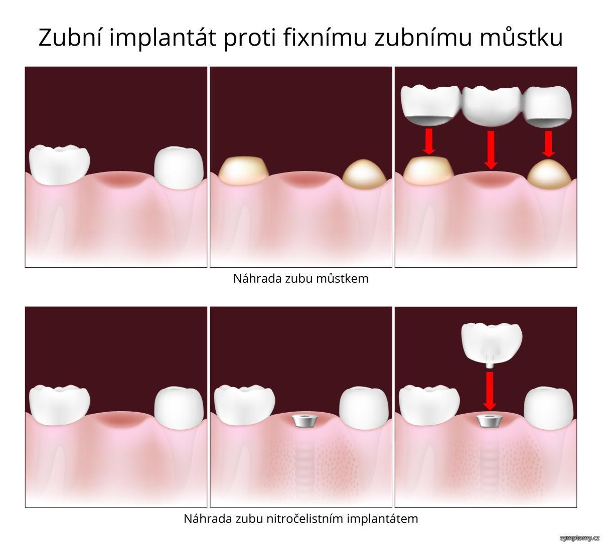 Zubní implantát proti fixnímu zubnímu můstku