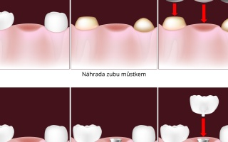 Dentální implantát nebo můstek?