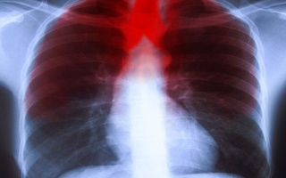 Jak poznat zápal plic?