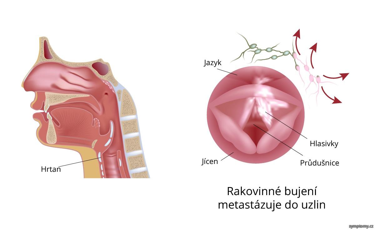 rakovinové bujení metastázuje do uzlin