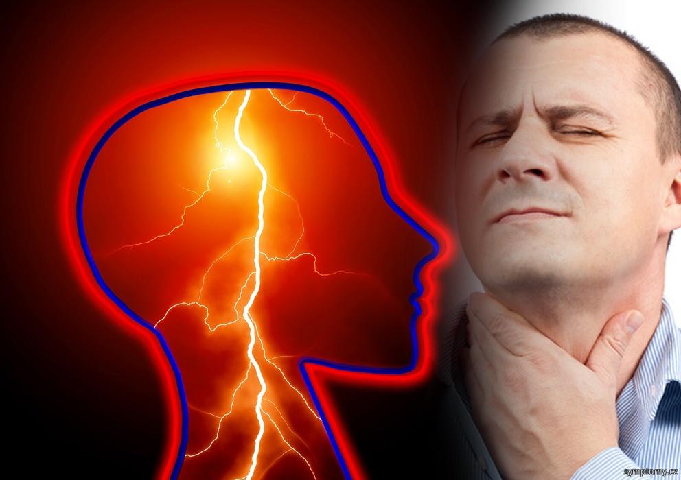 Příznaky amyotrofické sklerózy