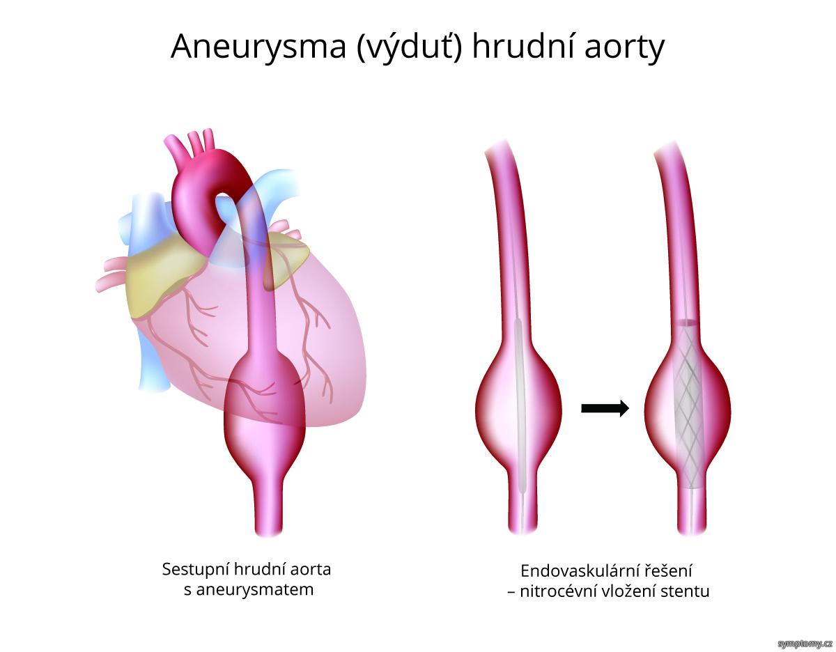 Aneurysma (výduť) hrudní aorty