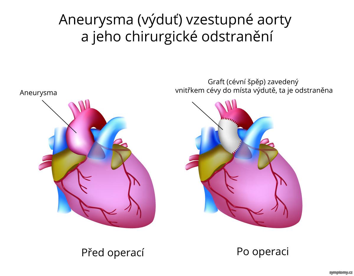 Aneurysma (výduť) vzestupné aorty a jeho chirurgické odstranění