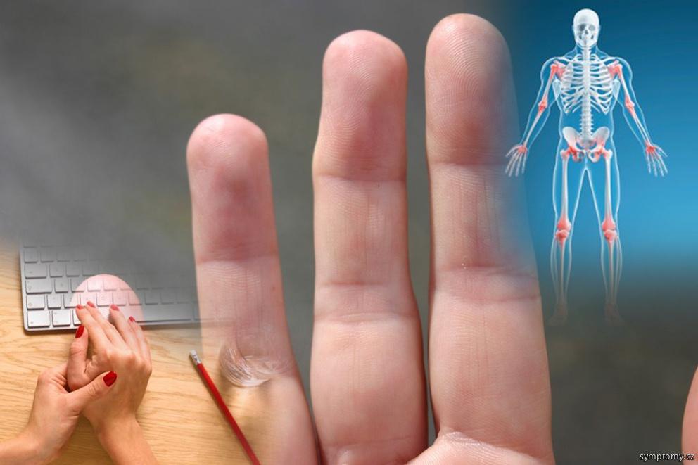 Příznaky artropatie
