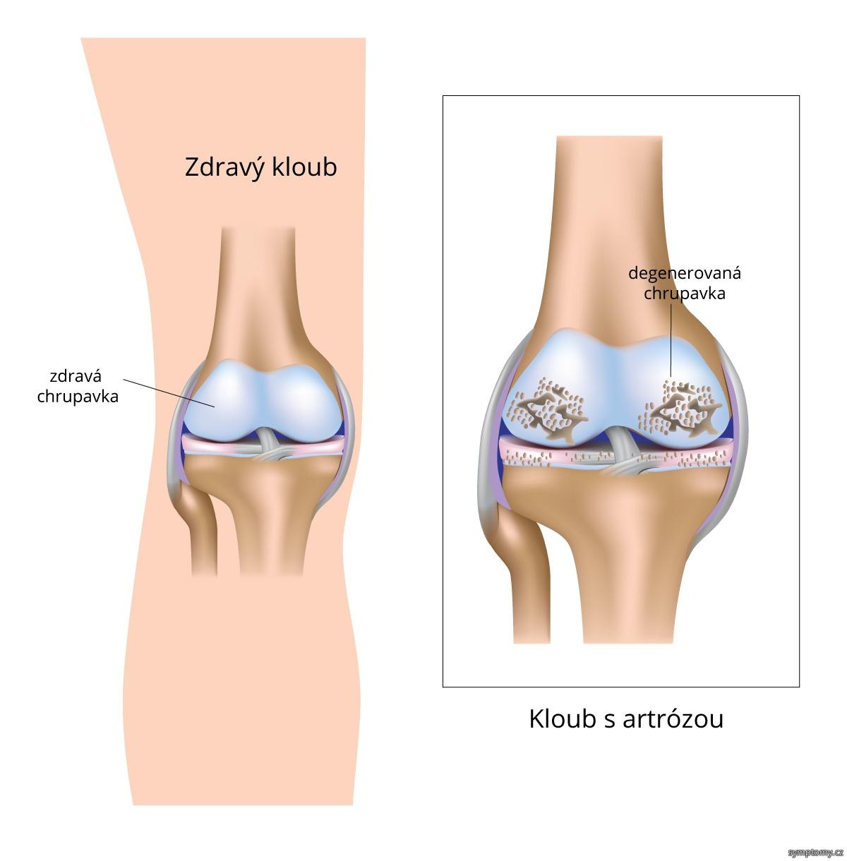 Artróza kolenního kloubu.jpg
