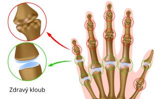 Artróza ruky
