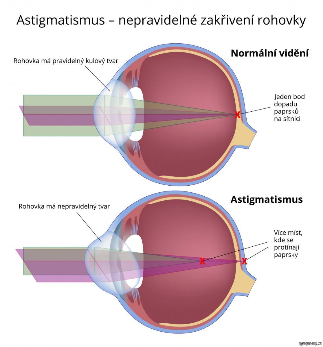 Astigmatismus - nepravidelné zakřivení rohovky