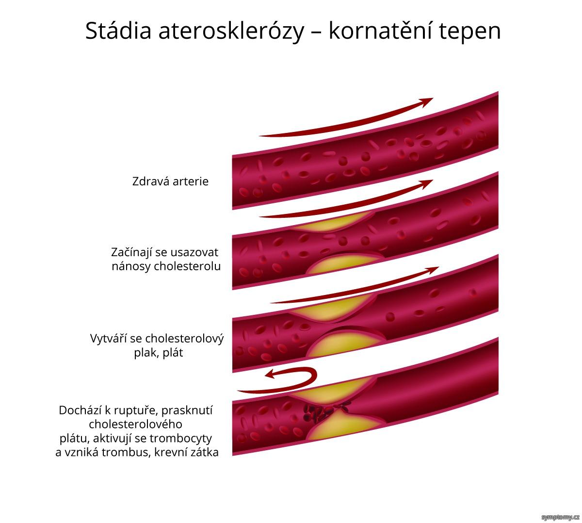 Stádia aterosklerózy - kornatění tepen