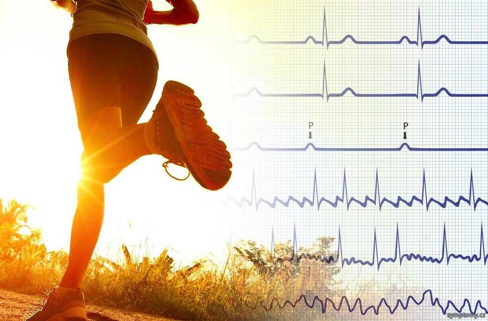 zpomalení srdeční činnosti - bradykardie