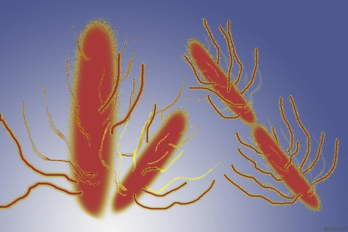 Bakterie Salmonella typhi - Břišní tyfus