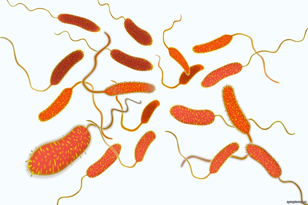 Bakterie Vibrio cholerae - původce cholery