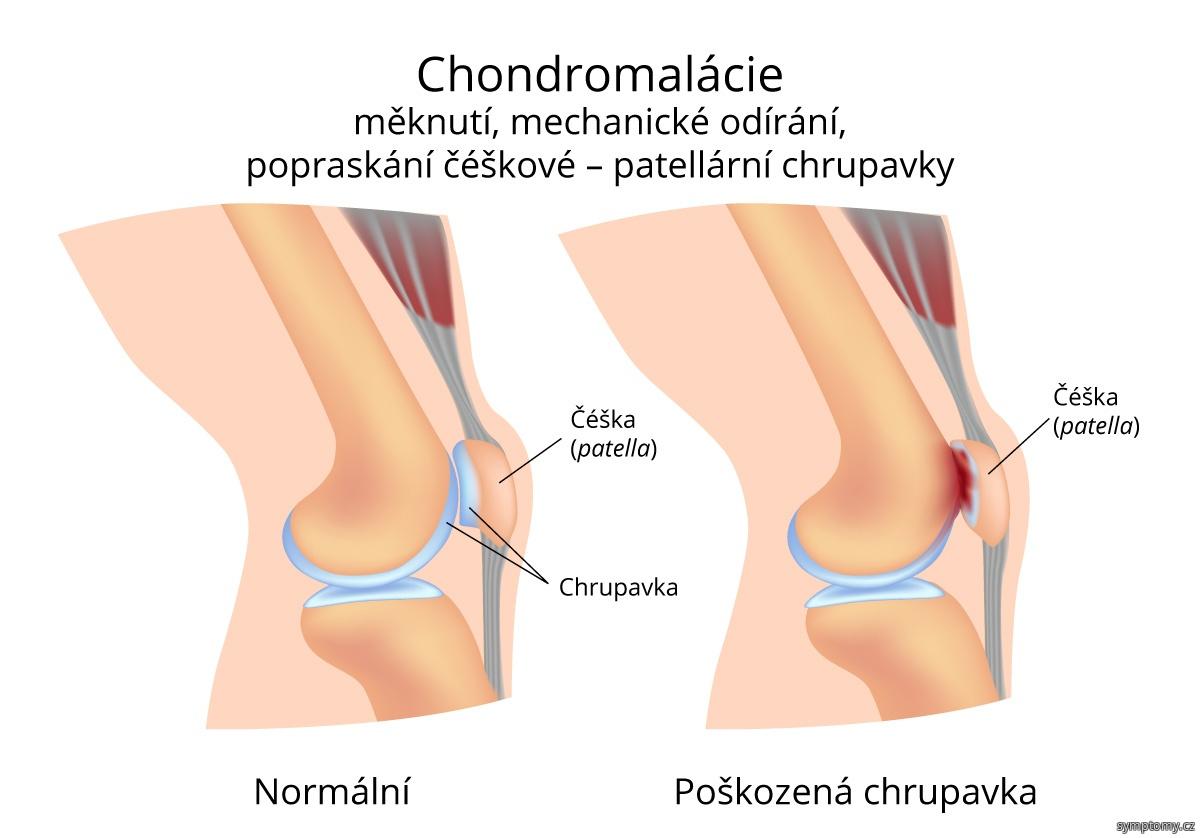 Chondromalácie (měknutí) čéšky