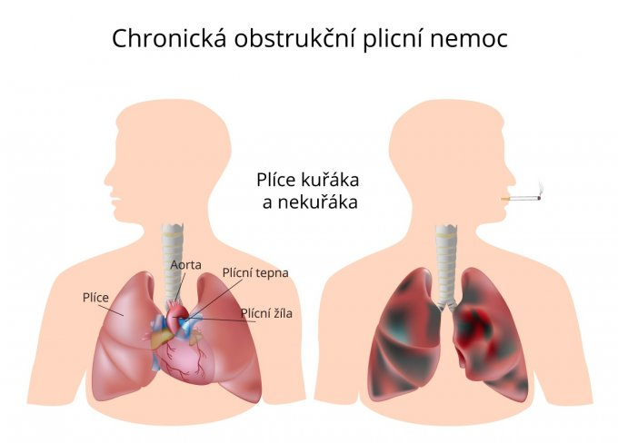Plíce při chronické obstrukční plicní nemoci