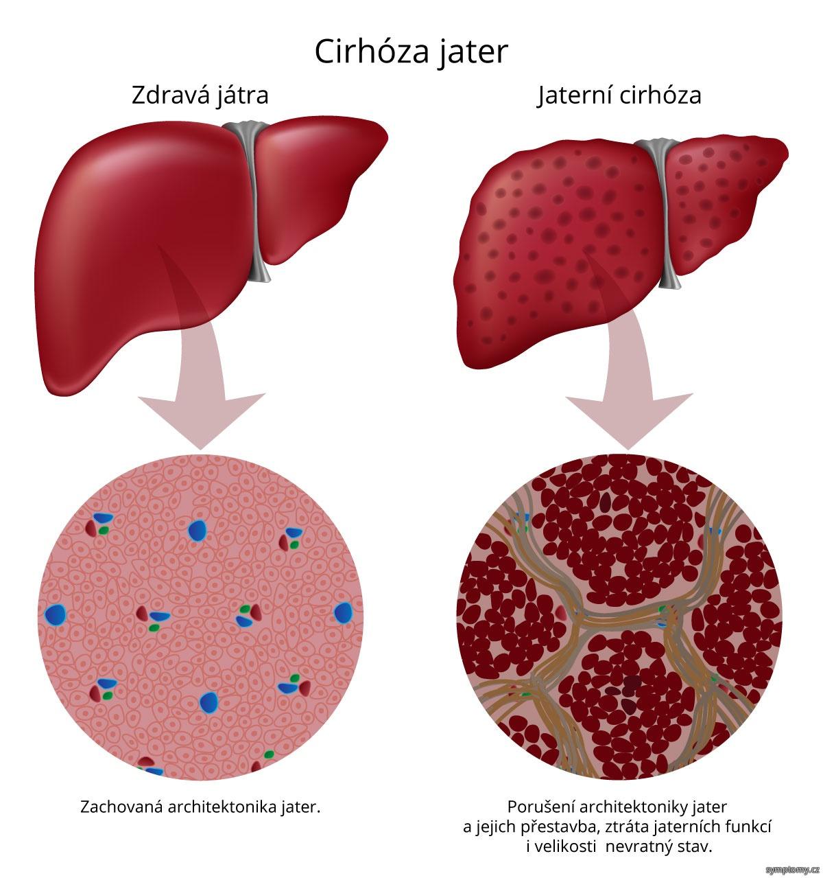 zdravá játra a jaterní cirhóza