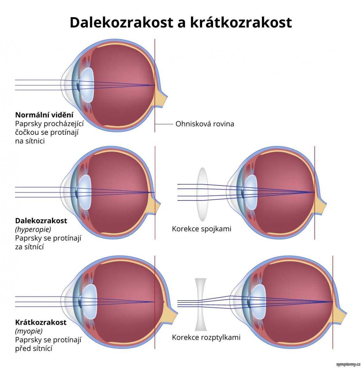 Dalekozrakost a krátkozrakost