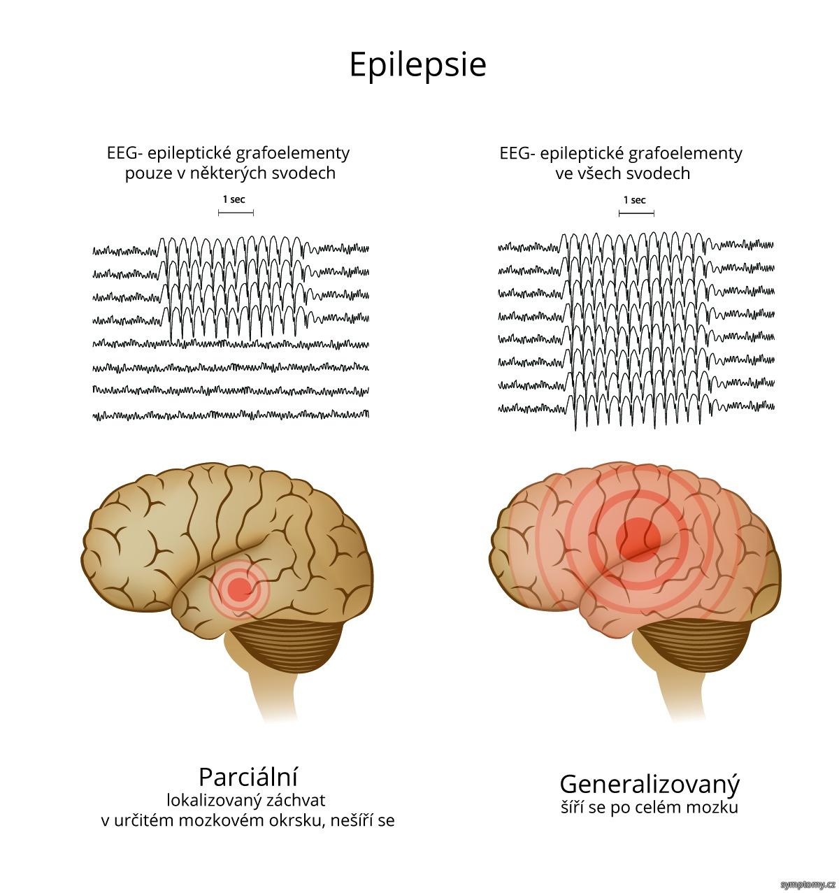 Epilepsie - parciální a generalizovaný záchvat