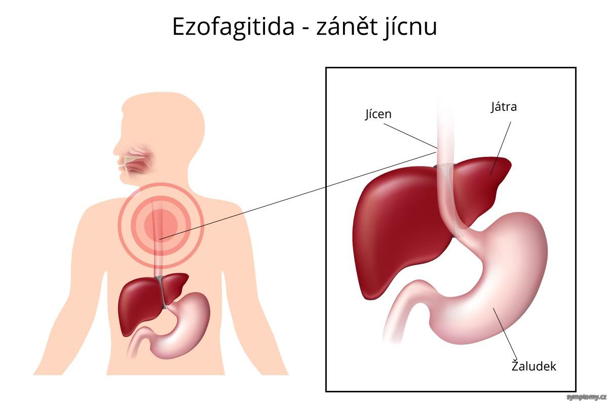 Ezofagitida - zánět jícnu