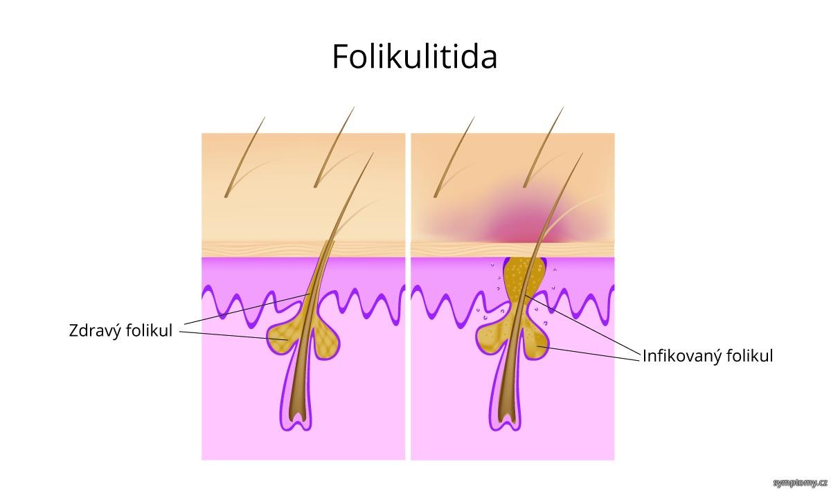 Folikulitida - zánět vlasového váčku