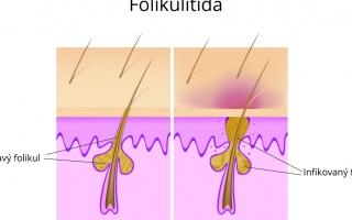 Folikulitida