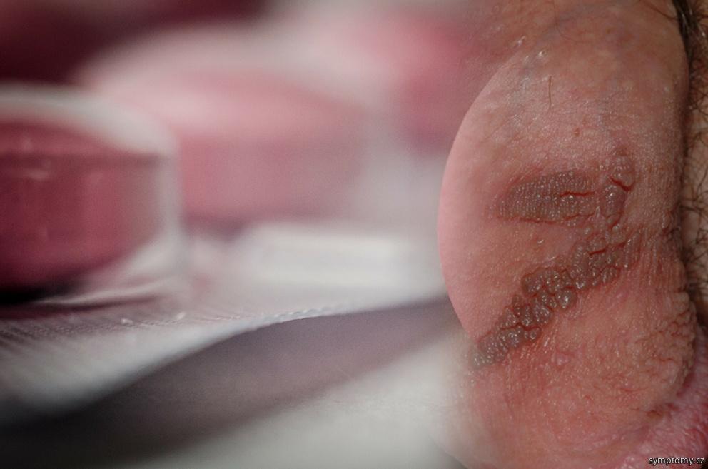 Genitální herpes - pohlavní choroba