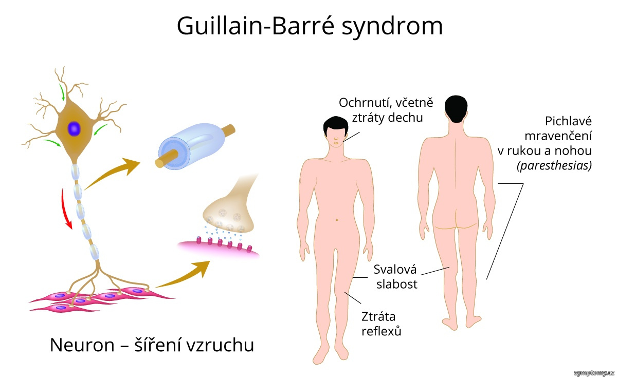 Guillain-Barré syndrom, GBS