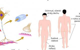 Guillain - Barré syndrom
