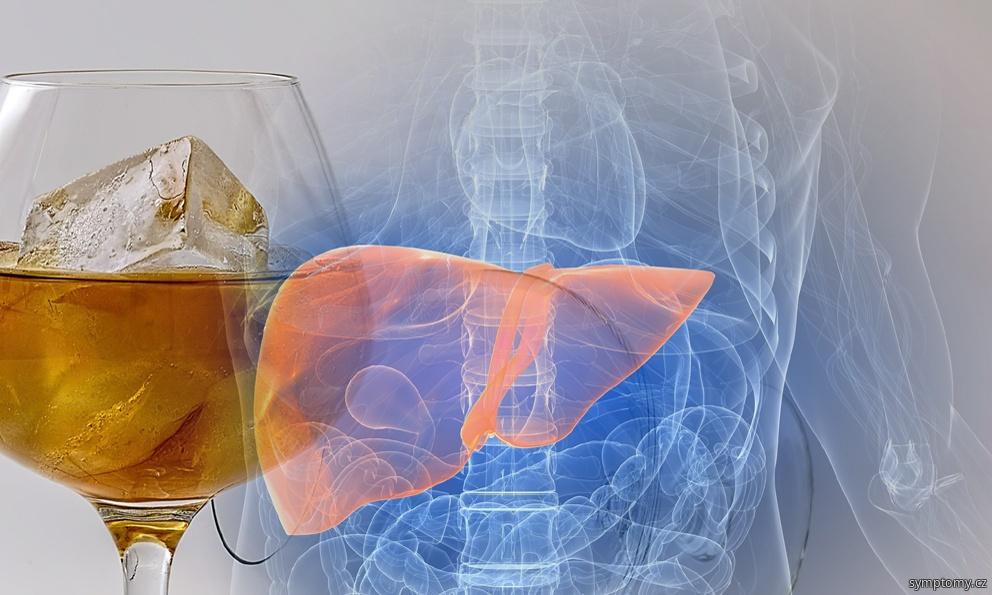 játra postižená nadužíváním alkoholu