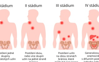 Hodgkinova nemoc
