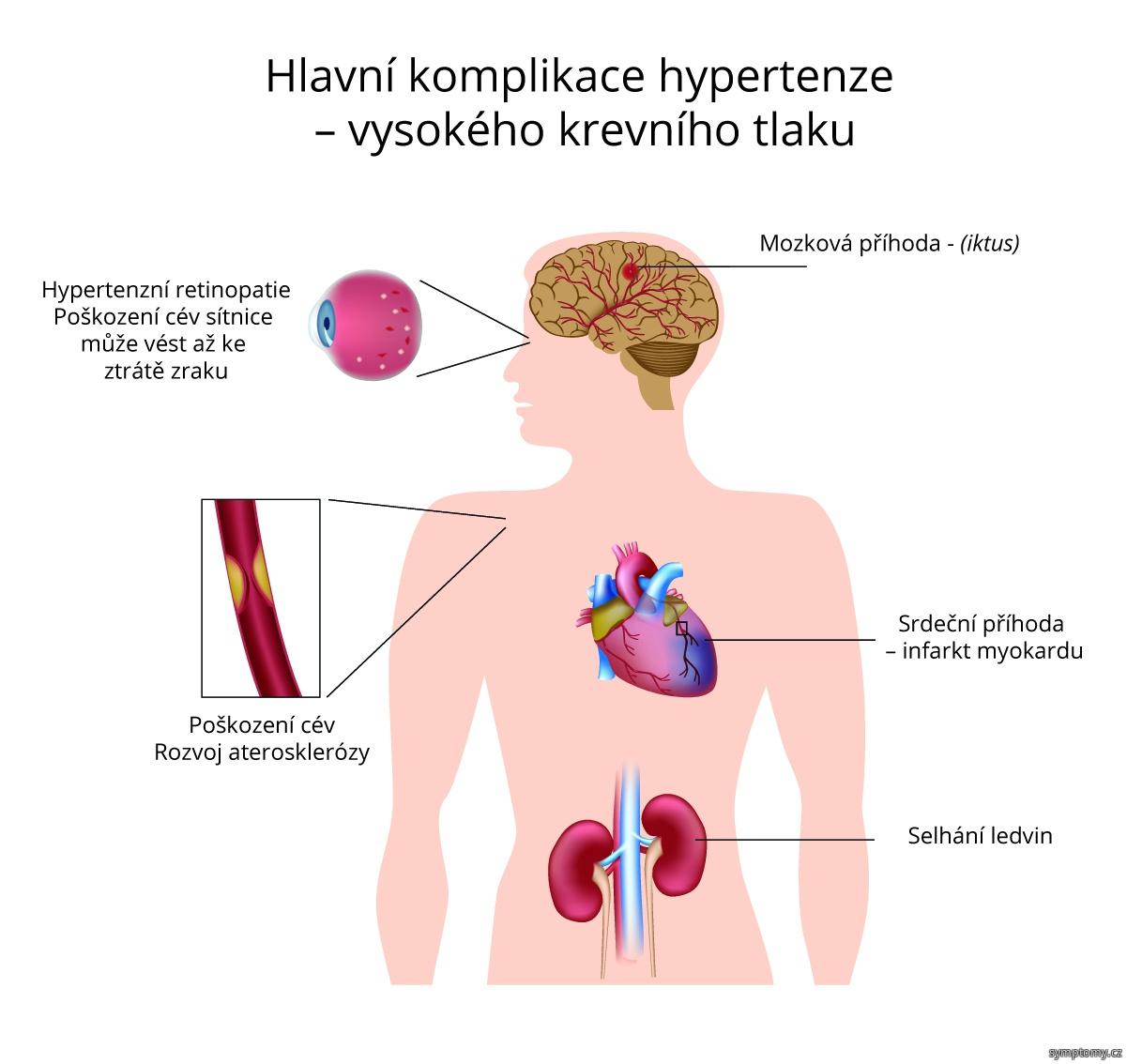 Hlavní komplikace hypertenze - vysokého krevního tlaku