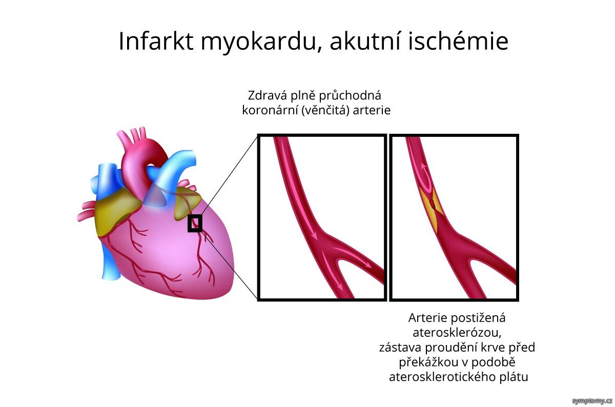 Infarkt myokardu - akutní ischémie