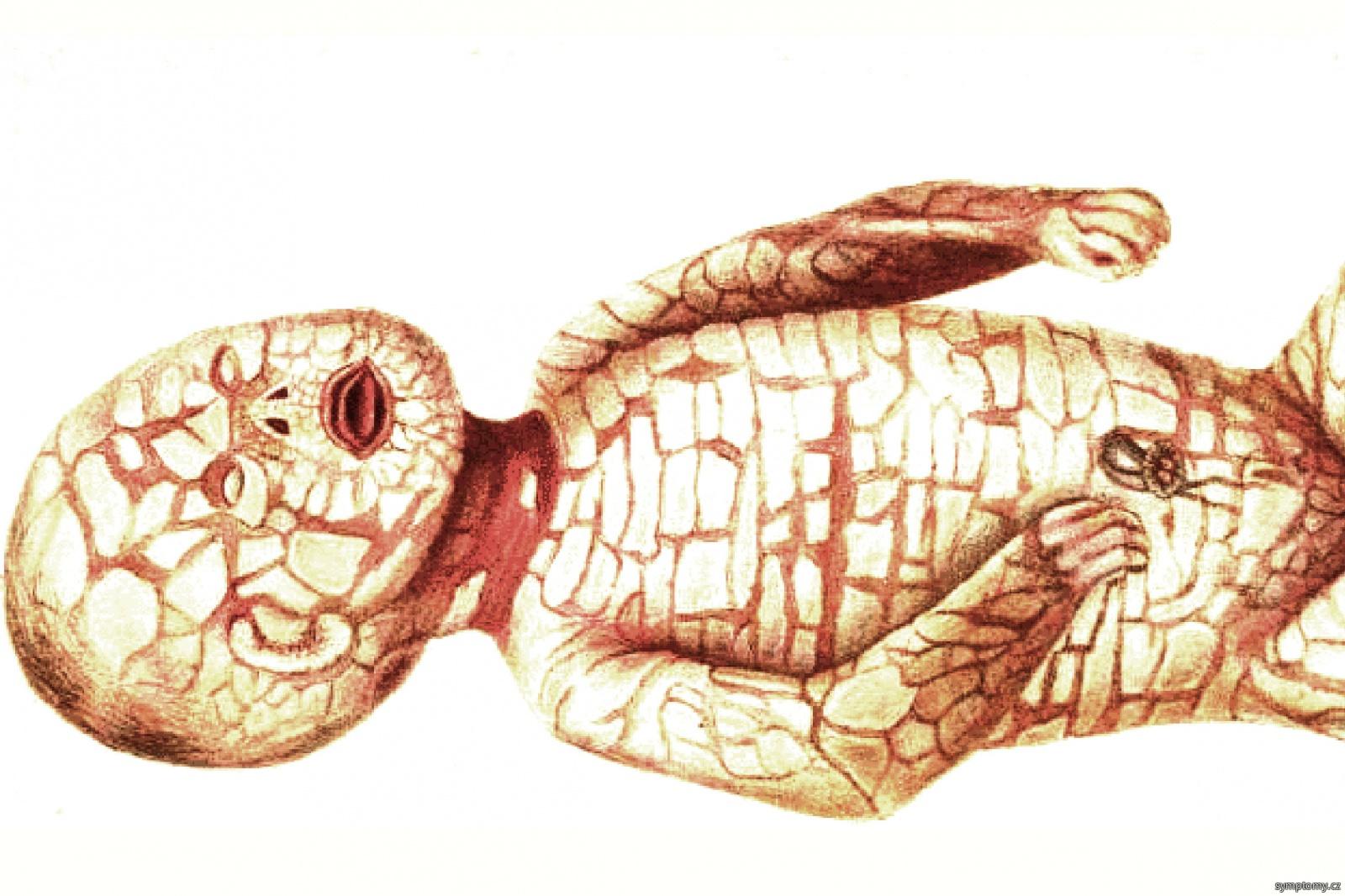 Harlequin Ichthyosis