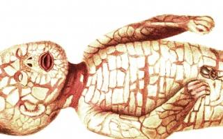 Kožní nemoc Harlekýn