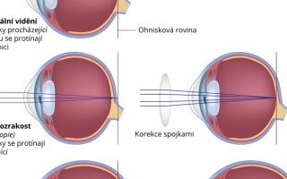 Krátkozrakost