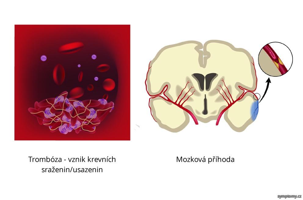 Trombóza příznakem Leidenská mutace