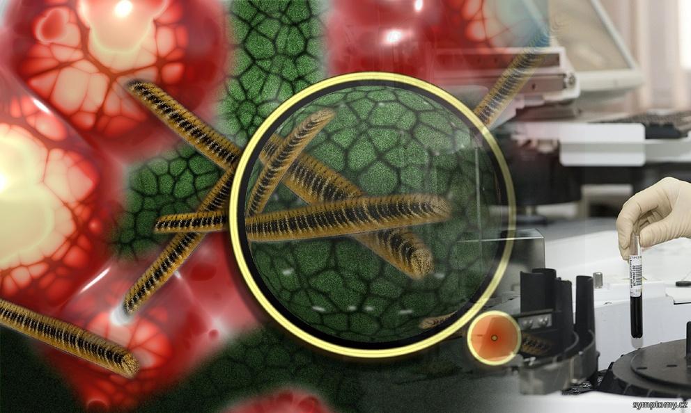 Mykoplazmata - atypické bakterie