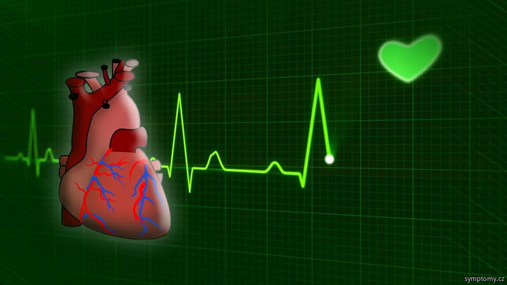 zánět srdečního svalu