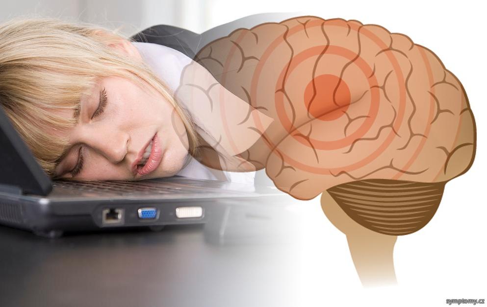 Narkolepsie, imperativní spavost, dyssomnie