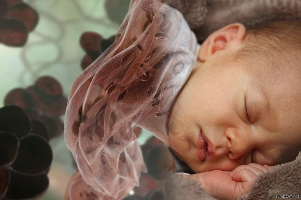 Žloutenka u novorozenců