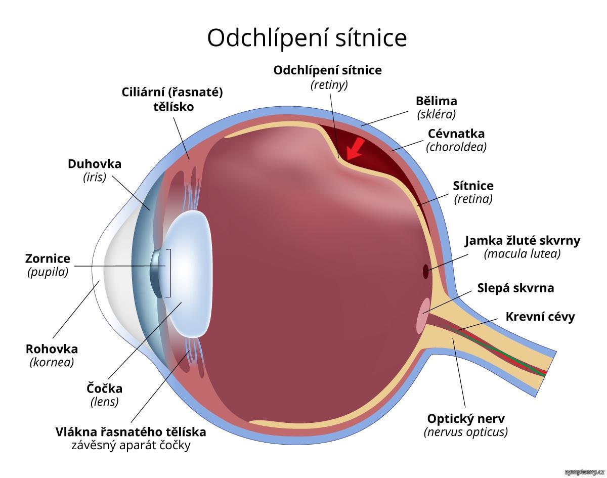 Odchlípení sítnice (retiny)