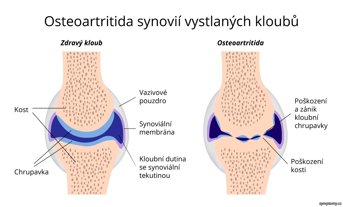 Osteoartritida synovií vystlaných kloubů