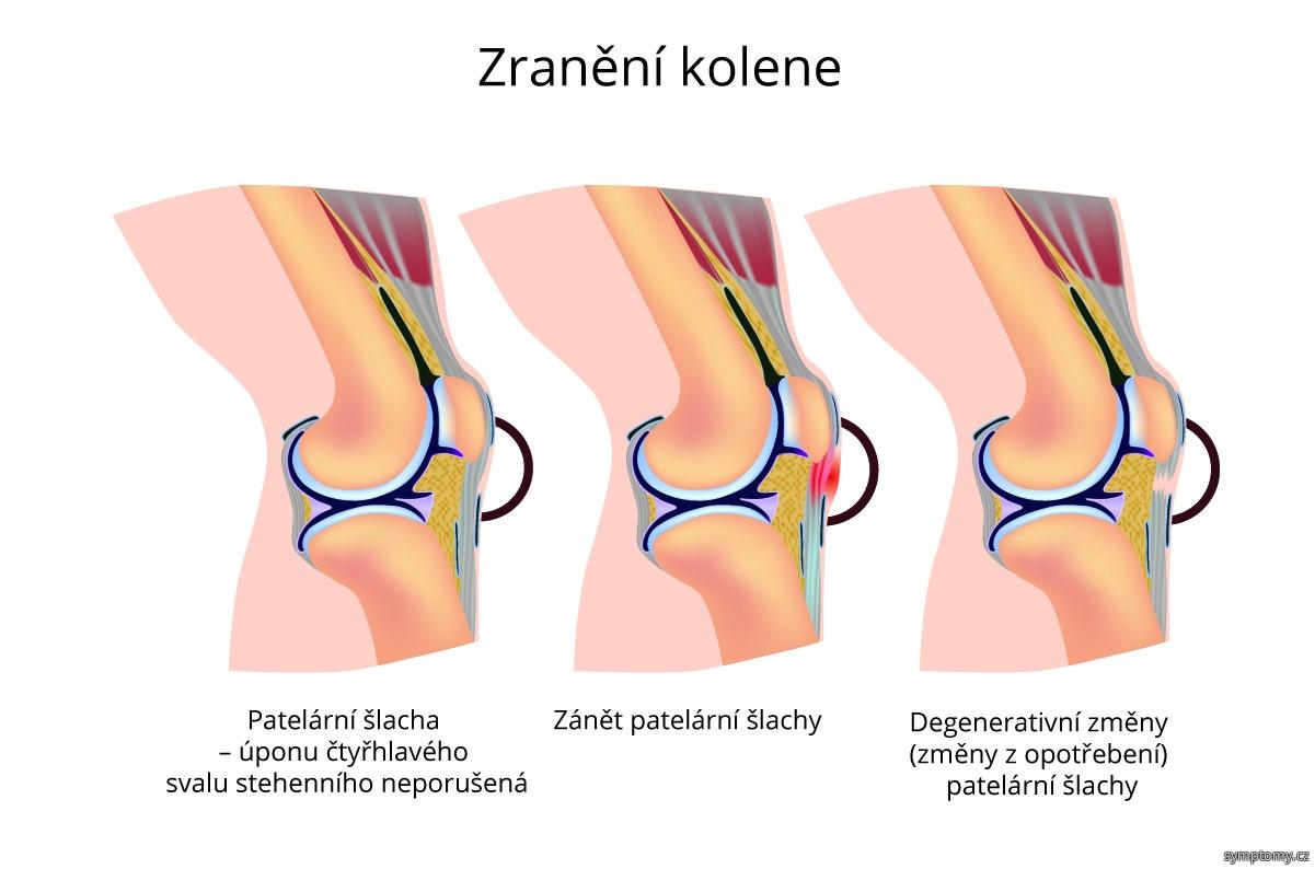 Zranění kolene