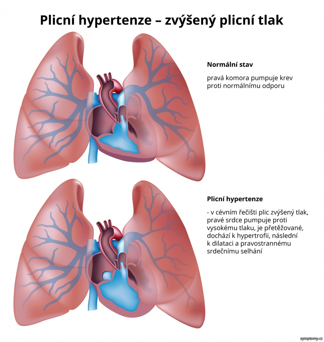 Plicní hypertenze - zvýšený plicní tlak