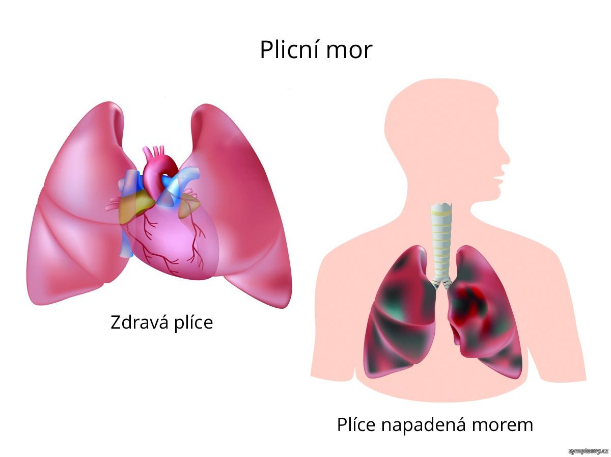 Plicní mor