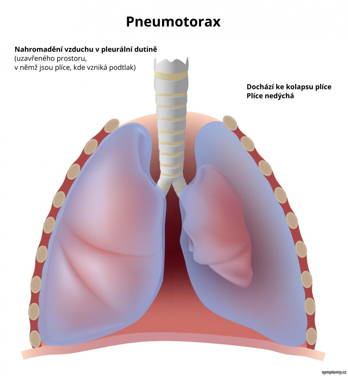 Pneumotorax (nahromadění vzduchu v pleurální dutině)