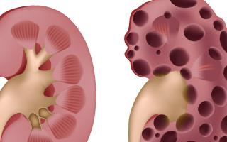 Polycystická nemoc ledvin