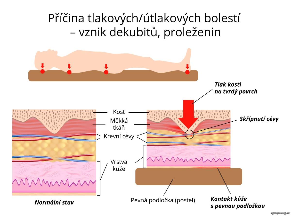 Příčina tlakových bolestí, vznik dekubitů (proleženin)