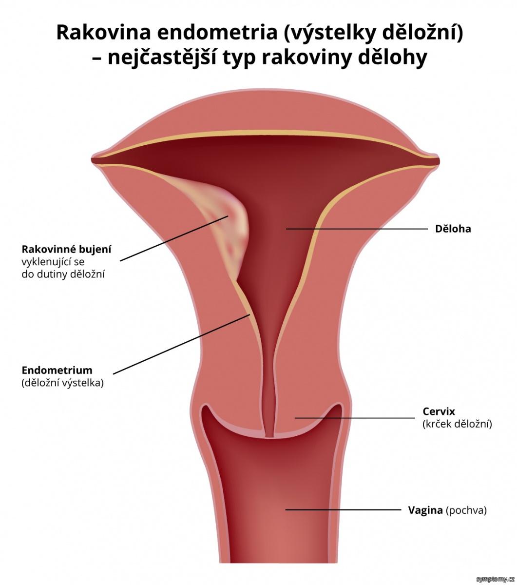 Rakovina endometria (výstelky děložní) - nejčastější typ rakoviny dělohy